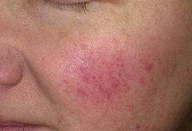 vörös foltok az arcon tünetek fotó)