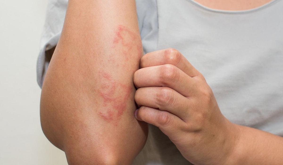 Ezek a leggyakoribb bőrbetegségek