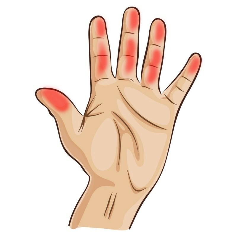 a kezek és a lábak duzzanata és vörös foltok milyen gyógynövény gyógyítja a pikkelysömör