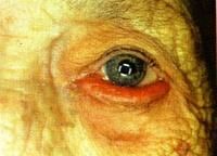 Vörös foltok a szemhéjon - Glaukóma