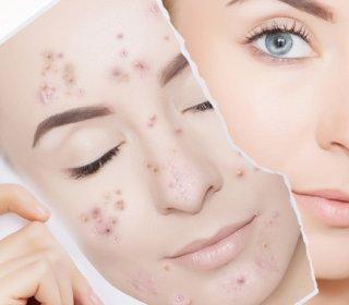 gél pikkelysömörből egészséges bőr vélemények