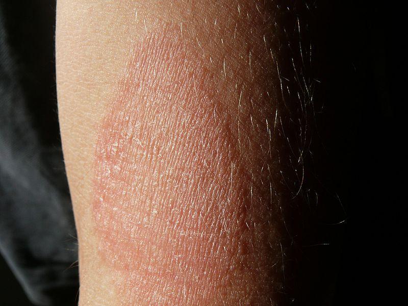 különféle vörös foltok a bőrön irritáció az arcon vörös foltok formájában az állon