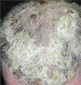 pikkelysömör a hajban hogyan kell kezelni