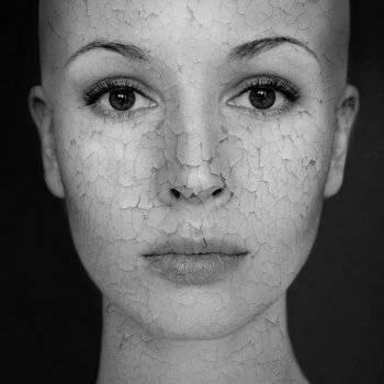 vörös foltok a homlokán viszketnek és hámoznak le fotó mint fehéríteni egy piros foltot az arcon