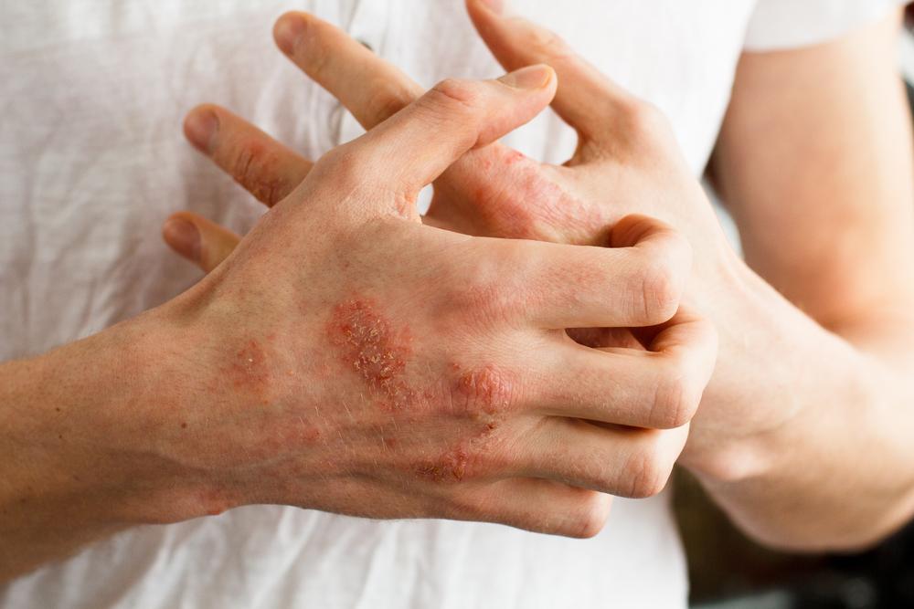 kitörések a bőrön vörös foltok formájában, viszketés a lábakon)