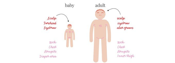 seborrheic dermatitis pikkelysmr kezels)