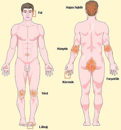 repedések kezelése pikkelysömörben testén vörös foltok hámlással