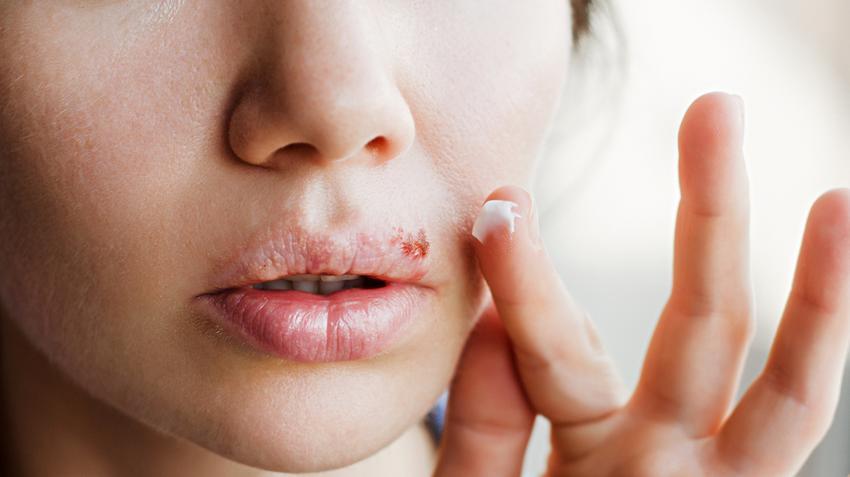 hiv herpesz hepatitis pikkelysömör kezelése a hörcsög hasán piros foltok vannak