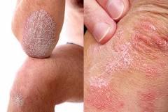 Hímvessző előbőrének gyulladása | Urológiai Klinika