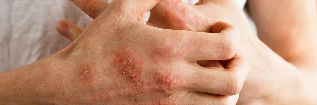 pikkelysömör ekcéma dermatitis kezelése