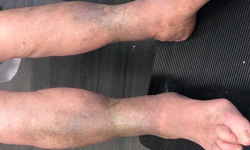vörös foltok az alsó lábszáron duzzadt lábakon kenőcs pikkelysömörre harraz