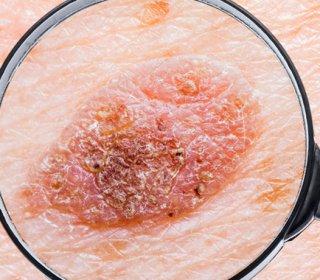 Betegségek, amikkel együtt járhat a pikkelysömör | hu