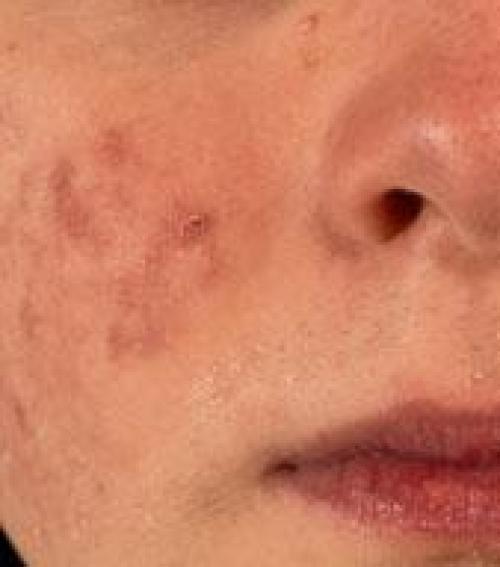 vörös száraz folt az arcon a szem alatt)