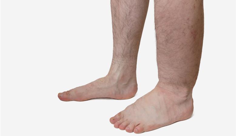 a lábak duzzanata és a bokán vörös foltok)