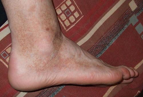 vörös fényes folt a lábán)