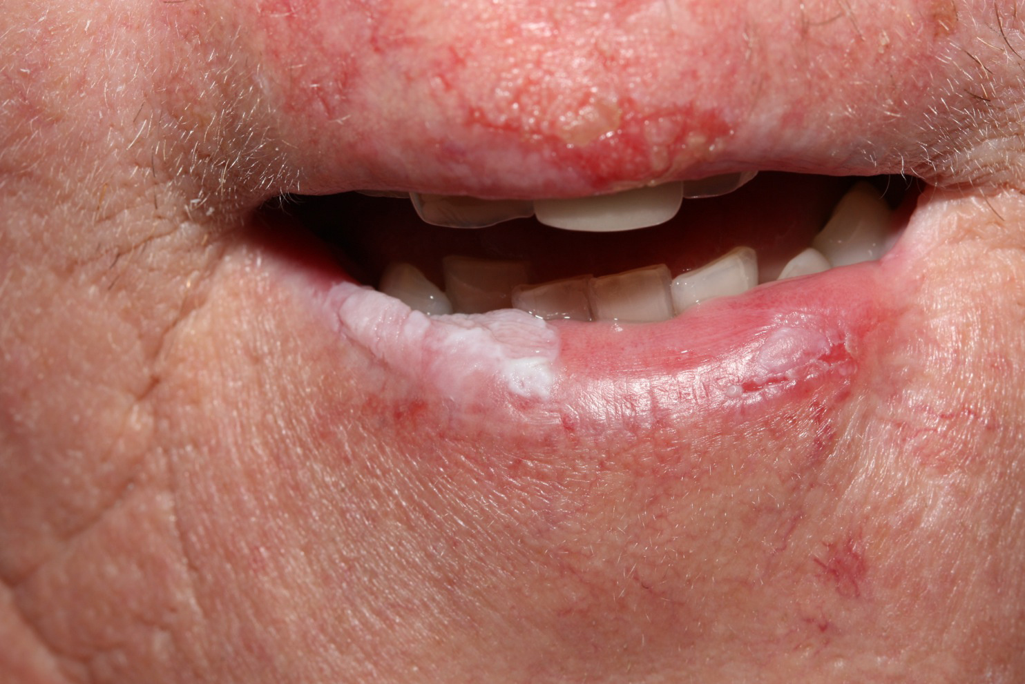 hogyan lehet eltávolítani a vörös foltokat az ajkakon