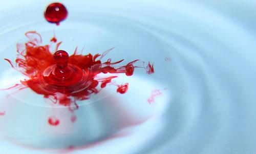 vörös vérfoltok a kezeken és a lábakon