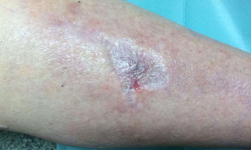 vörös folt a bőr sérülése után