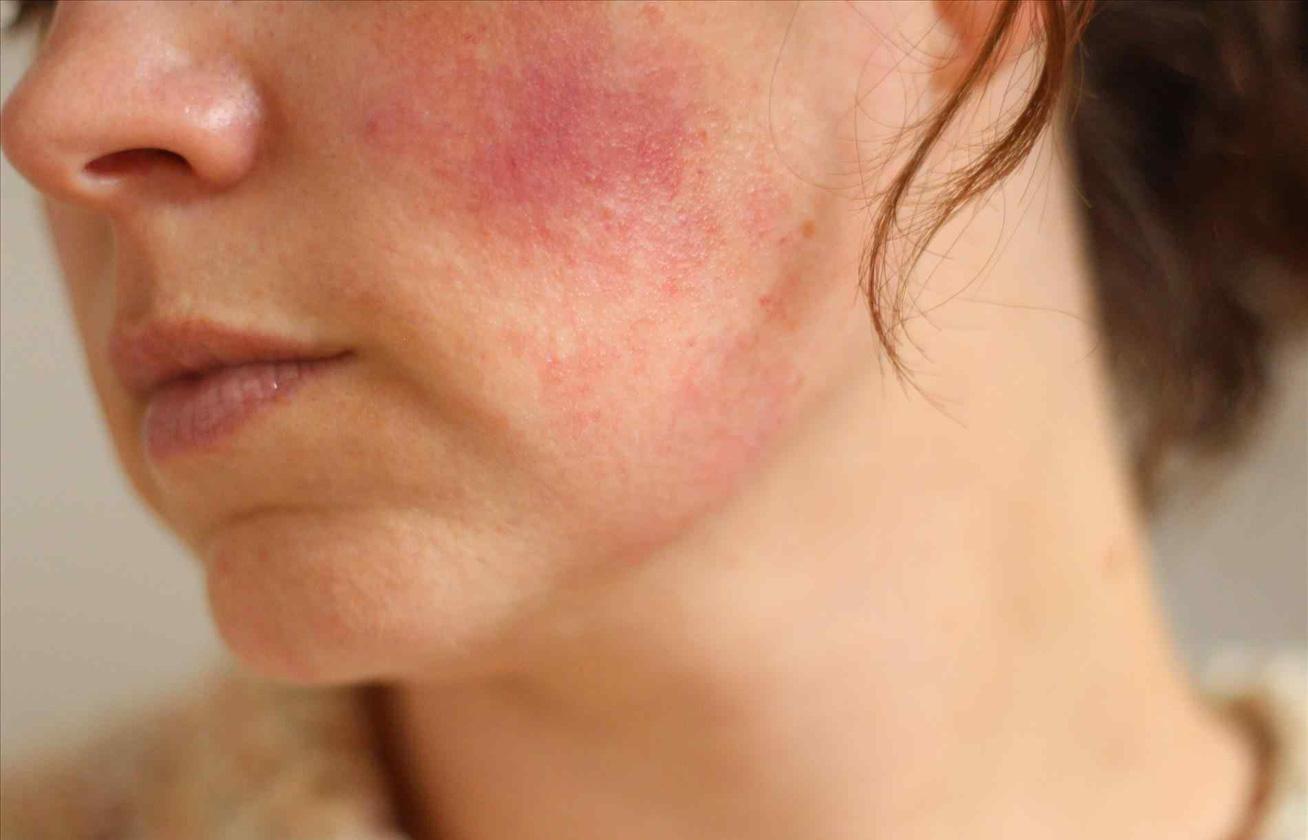 Amikor túl piros az arcbőr - Egészségtükösunnymodell.hu
