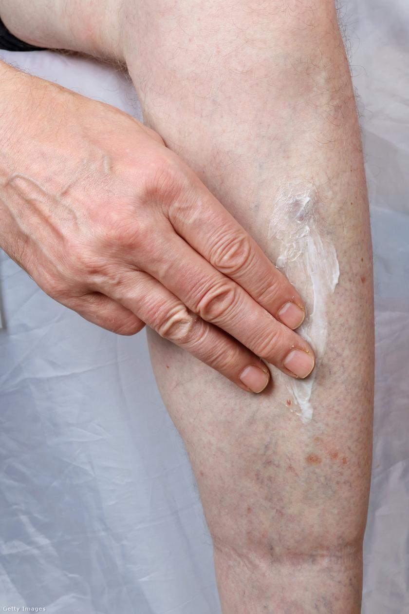 piros foltok a cukorbetegség lábszárán