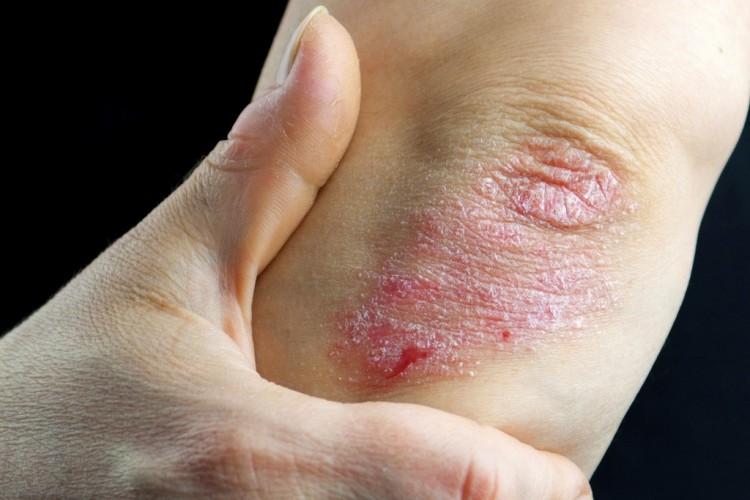 hogyan lehet otthon pikkelysömör gyógyítani örökre a lábán