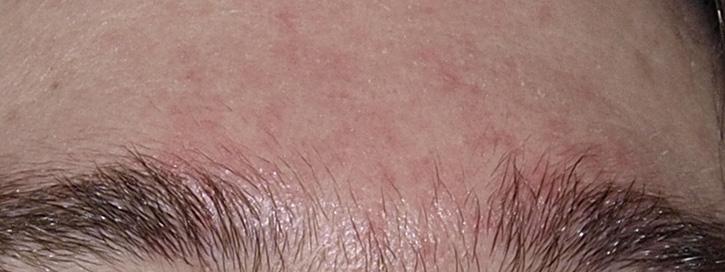 hámlás az arcon és a vörös foltok okozzák