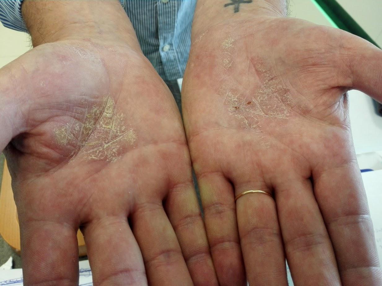 vörös foltok viszketnek a tenyerén és a kezén pikkelysömör kezelése az avitón