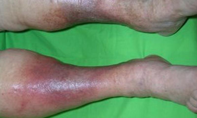 vörös viszkető foltok a lábakon, visszér fotó