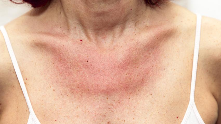 a test viszket, és utána vörös foltok jelennek meg ízületek és vörös foltok fájnak az arcon