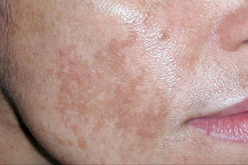 pigmentált vörös foltok az arcon)