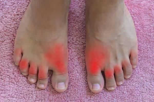 a lábán vörös foltok a láb megduzzad