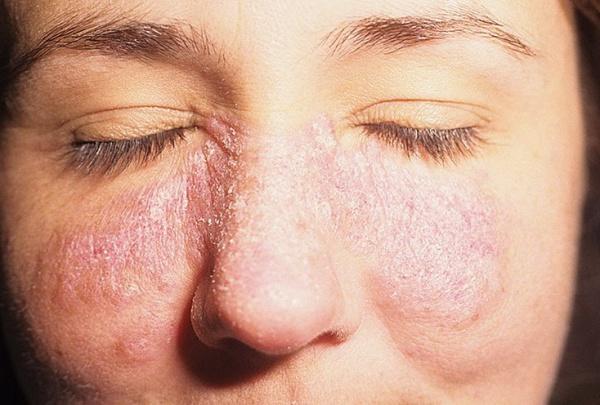amelyből vörös pelyhes foltok jelennek meg az arcon édesem. gyógyszerek pikkelysömörhöz