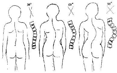 scoliosis pikkelysömör kezelése)