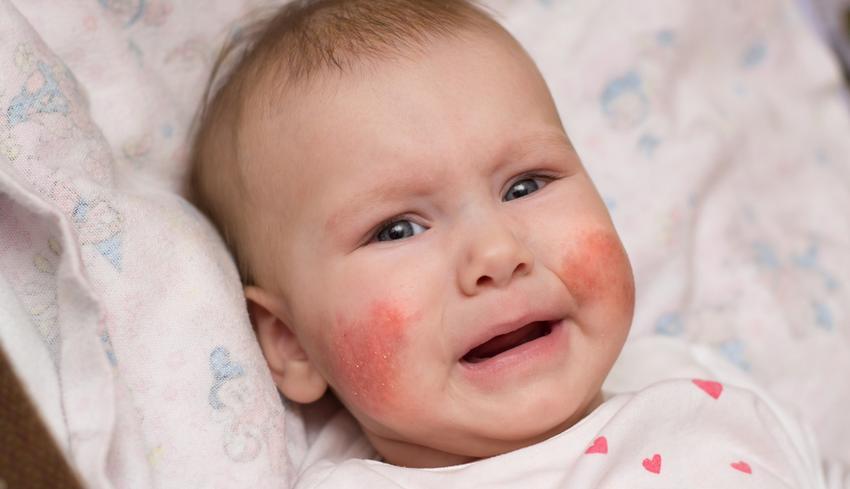 az arcon a bőr hámlik és vörös foltokkal borított)