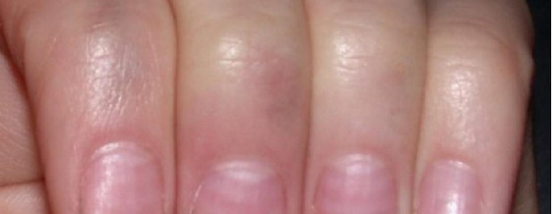 a kar hajtásán egy folt piros folt bioderma csomópont a psoriasis kezelésére vonatkozó véleményekhez