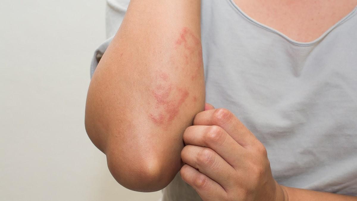 kiütés a testen vörös foltok formájában a kezeken)