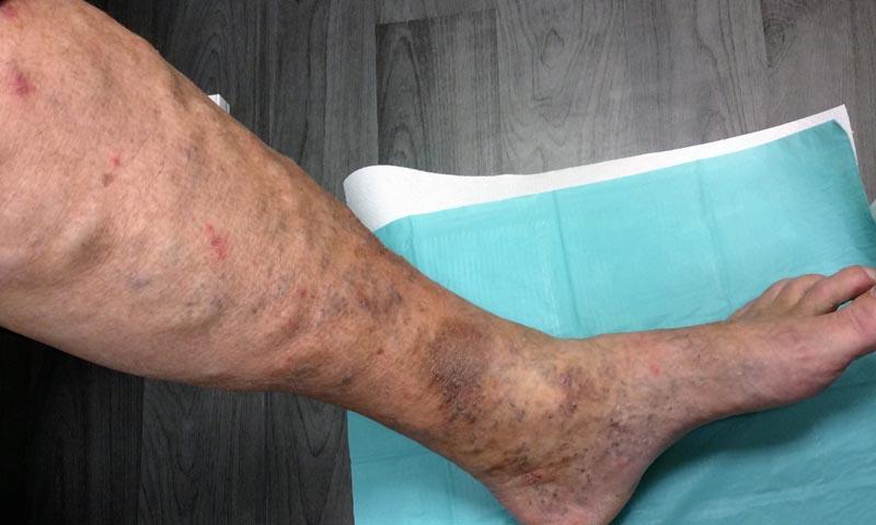 vörös folt a láb bőrén forró