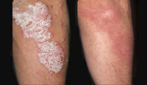 ekcéma, vitiligo