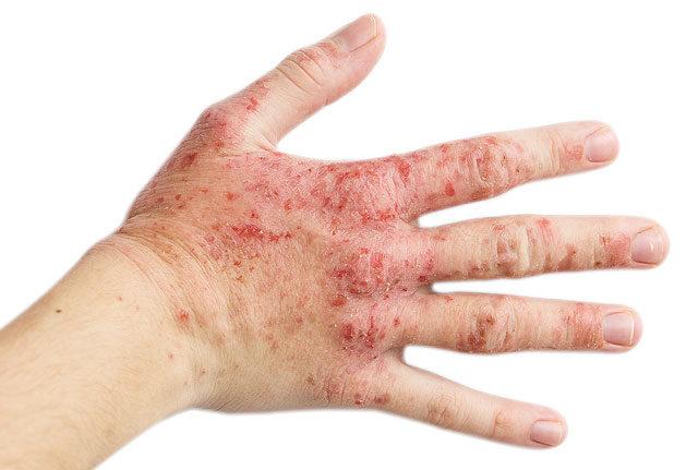 vörös folt és hólyagok vannak a kezén)