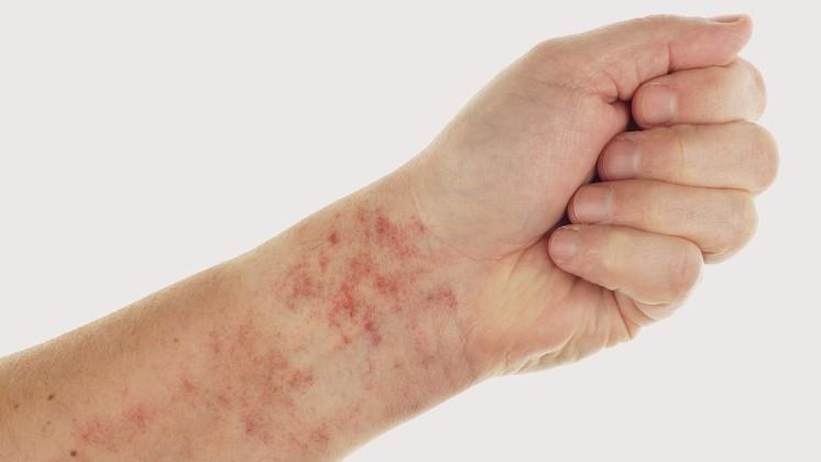 vörös pikkelyes folt a láb bőrén vörös foltok a testen leválnak a fotóról