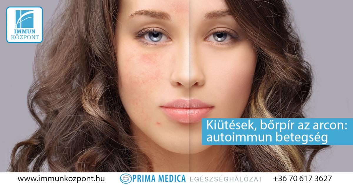 arcégés és vörös foltok az arcon a kozmetikus után)