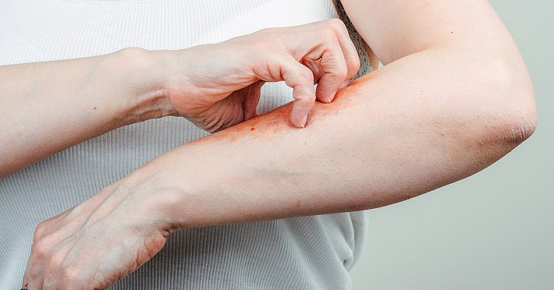 pikkelysömör kezelése 10 - 10 - 10