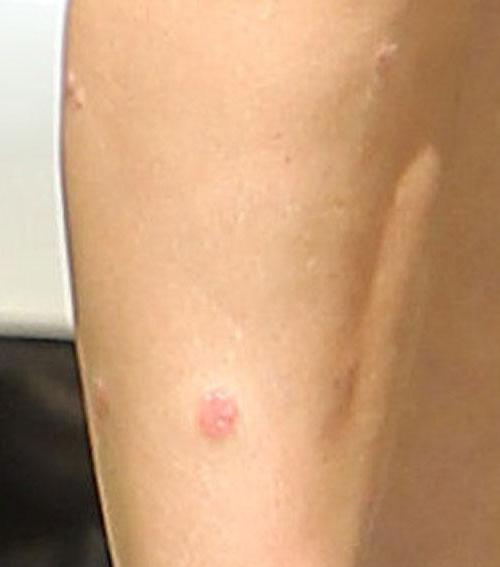 Ekcéma krém - sebes, viszkető, gyulladt ekcémás bőrre - L'amia Natura