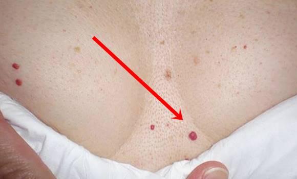 Apró, piros pöttyök jelennek meg a bőrömön. - Bőrbetegségek