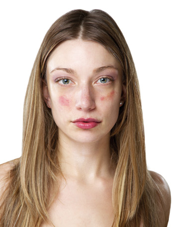 az arcon a bőr hámlik és vörös foltokkal borított hámló bőr a kezeken és vörös foltok