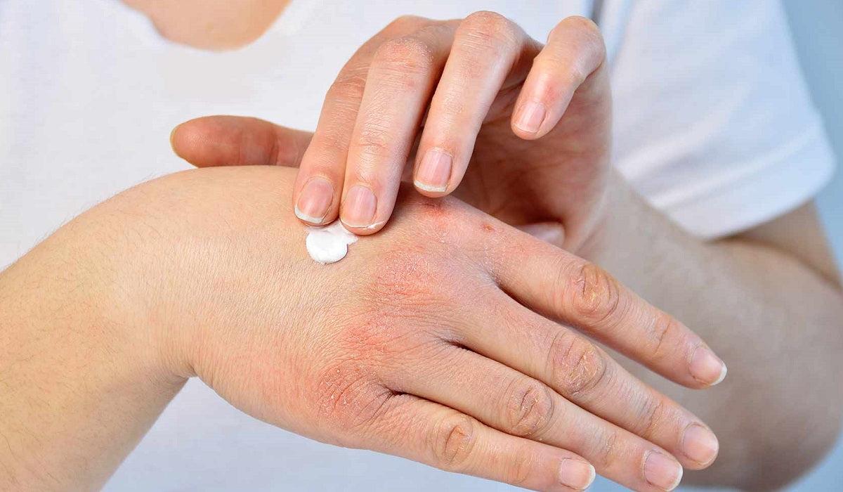 bodza kezelése pikkelysömörhöz piros folt a kezén, mit kell tenni