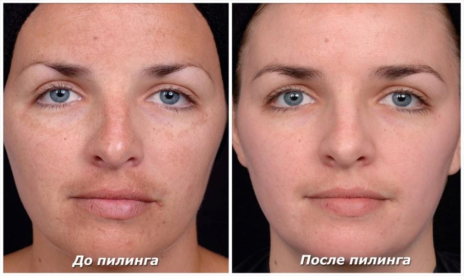 arc vörös foltokkal a hámozás után