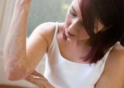 hogyan lehet enyhíteni a viszket fejet pikkelysömörrel