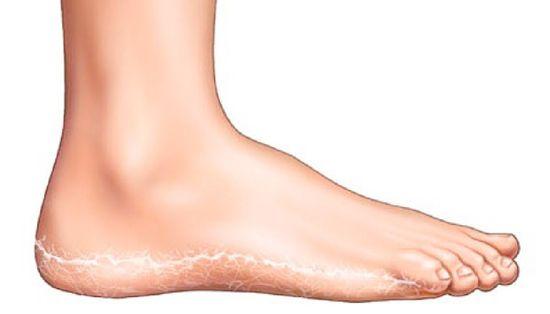 a lábakon vörös foltok megjelenésének oka