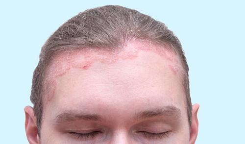 fű pikkelysömörhöz a fejen